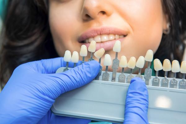 中台寿一歯科医院 ホワイトニング シェード