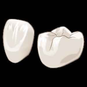 中台寿一歯科医院 歯周病治療 ジルコニア