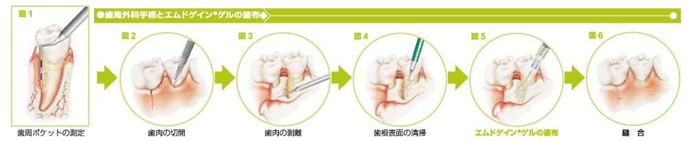 中台寿一歯科医院 再生治療 エムドゲイン