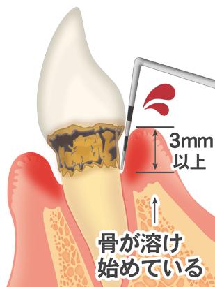 中台寿一歯科医院 歯周病