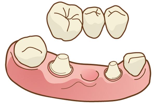 中台寿一歯科医院 入れ歯・ブリッジ・インプラント メタルボンド
