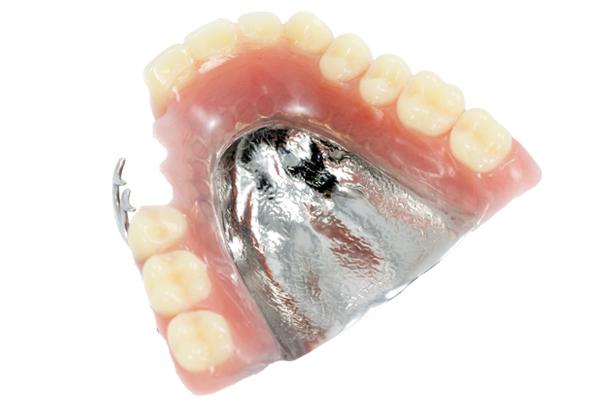 中台寿一歯科医院 入れ歯・ブリッジ・インプラント 金属床義歯