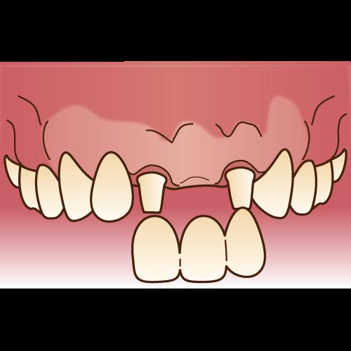 中台寿一歯科医院 入れ歯・ブリッジ・インプラント メタルボンドブリッジ