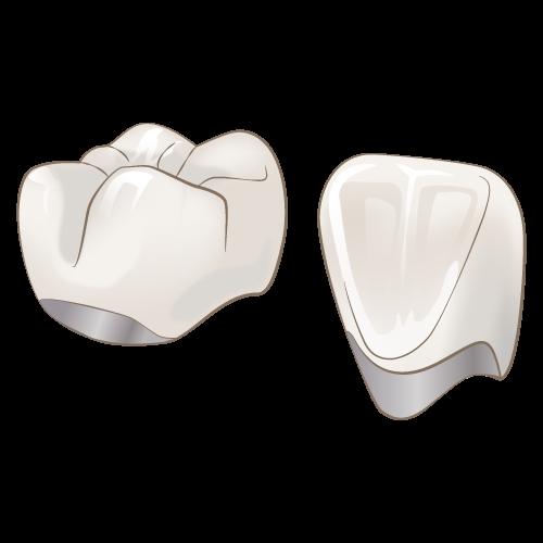 中台寿一歯科医院 歯周病治療 メタルボンド