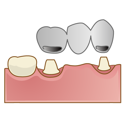中台寿一歯科医院 入れ歯・ブリッジ・インプラント 金銀パラジウム合金