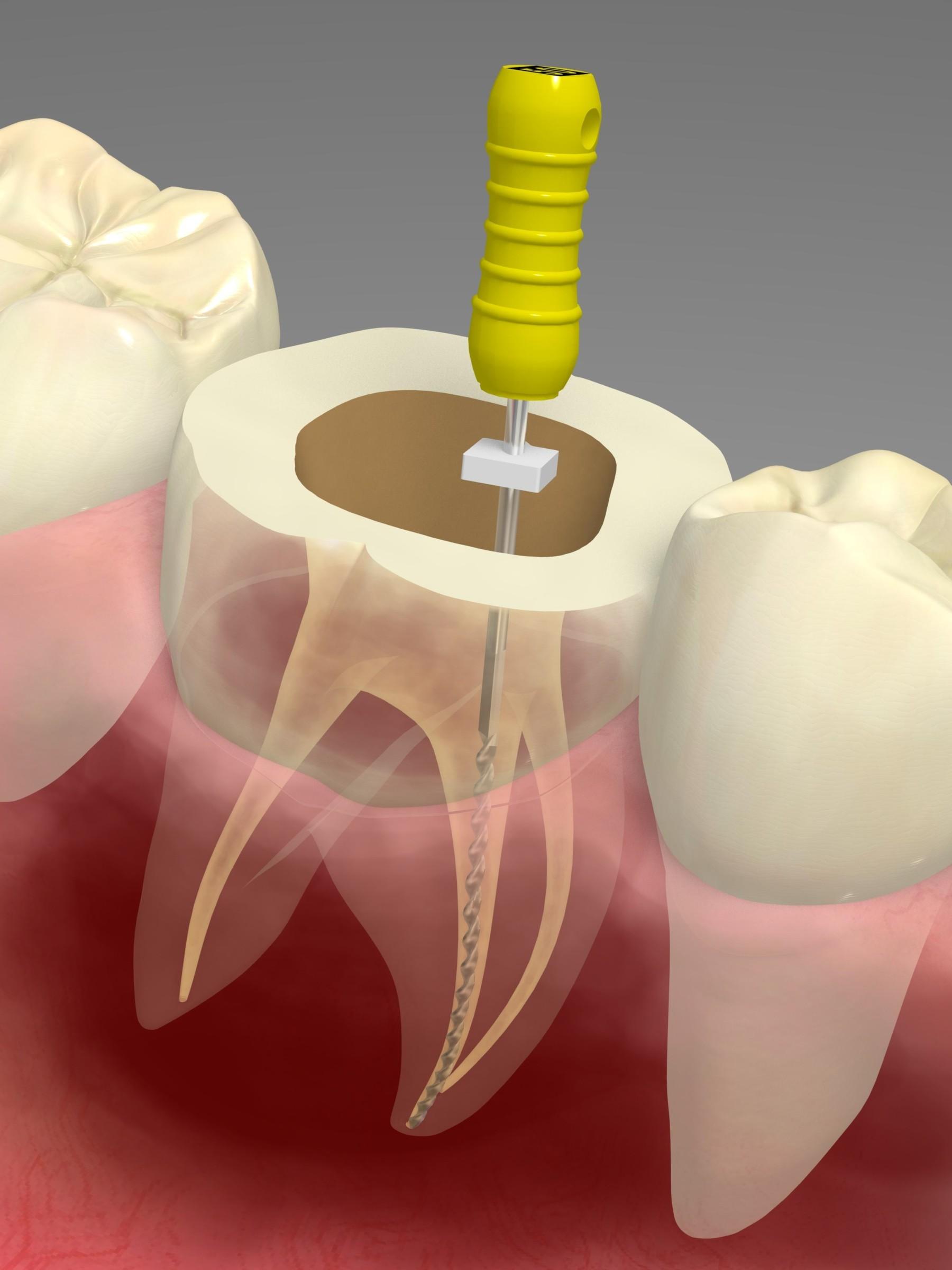 中台寿一歯科医院 一般歯科 根管治療