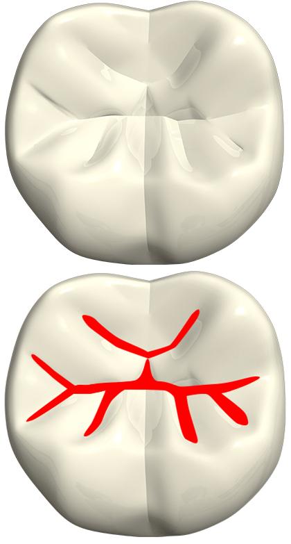 中台寿一歯科医院 小児歯科 シーラント