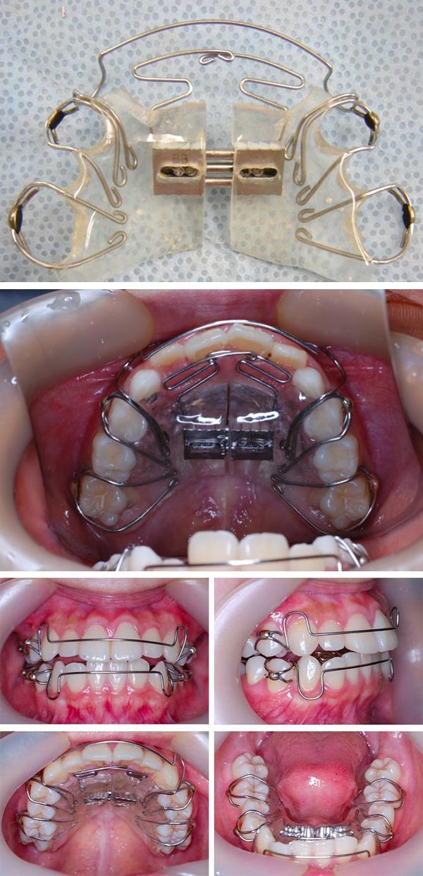 中台寿一歯科医院 小児歯科 SH矯正